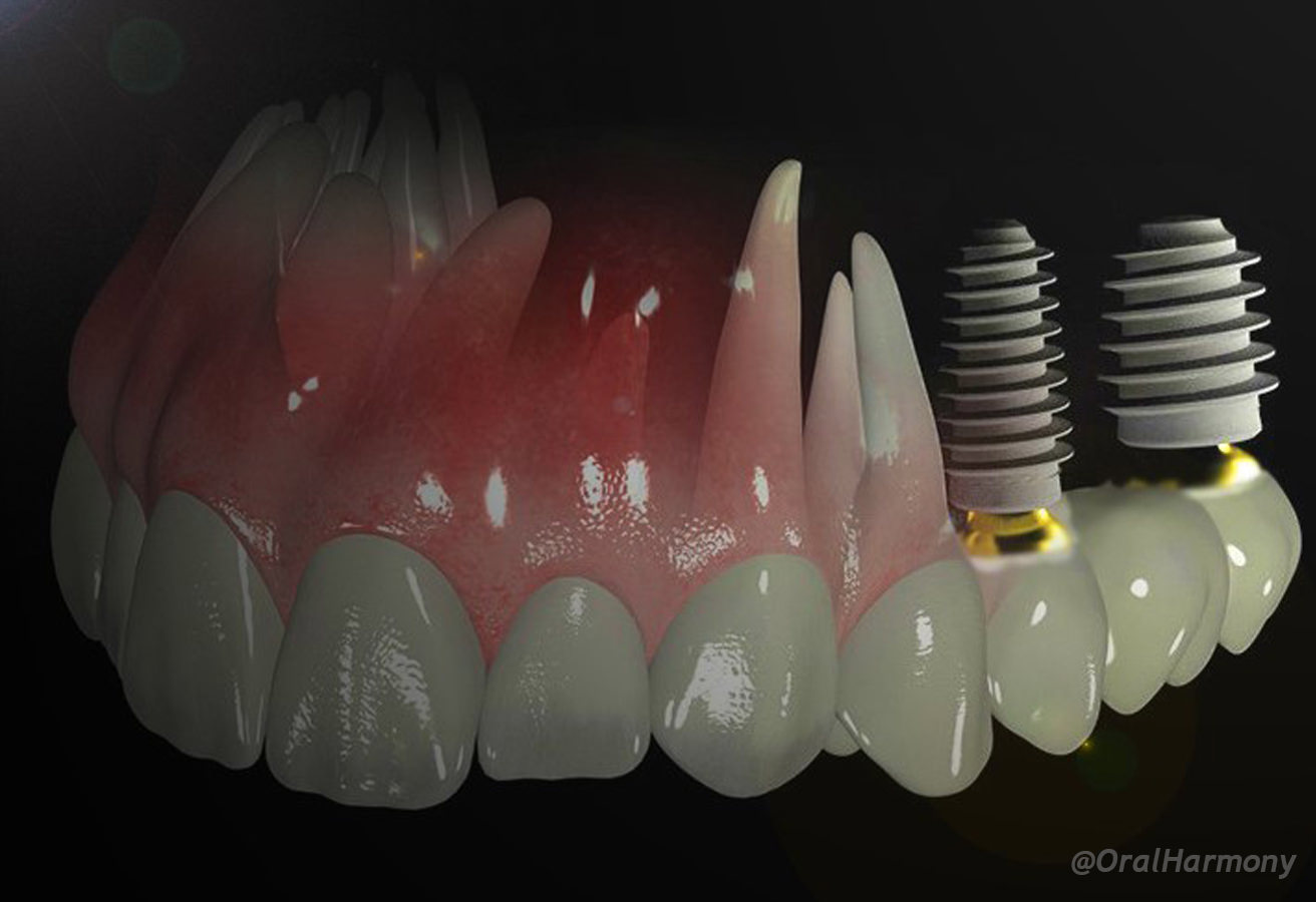 Oral Harmony Dental Implants Medellín Colombia