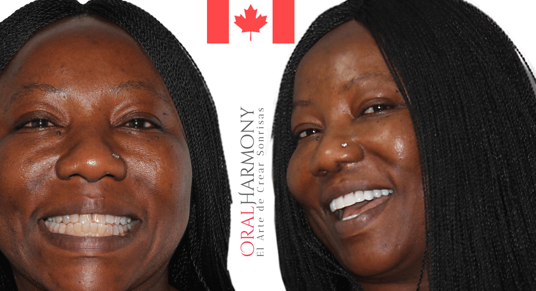 Oral Harmony Smile Makeover - Canada