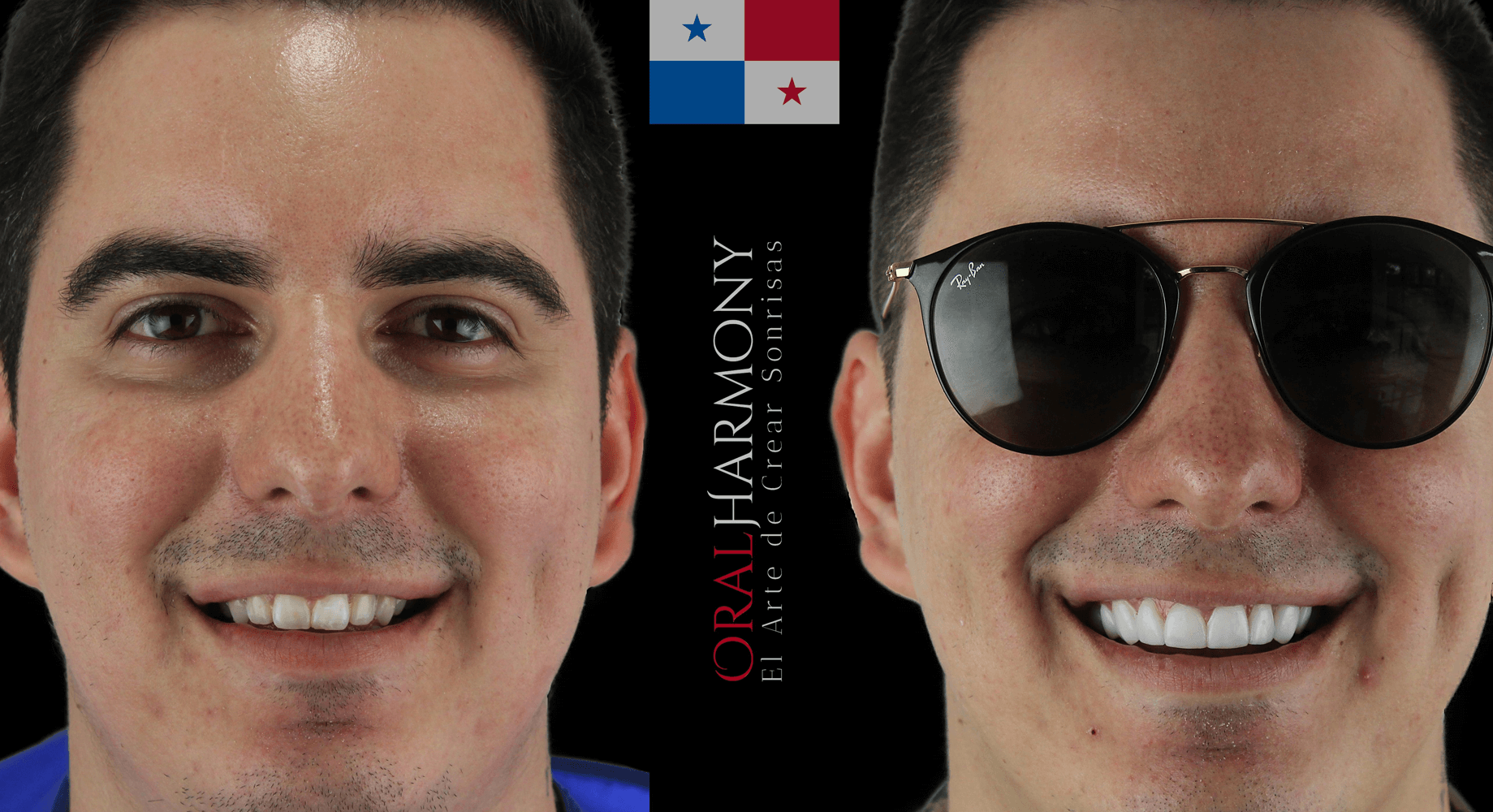 Oral Harmony Smile Makeover - Panama