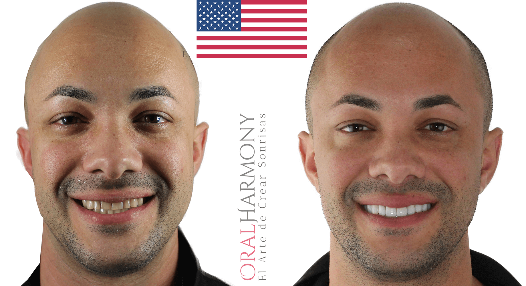 Oral Harmony Smile Makeover - United States